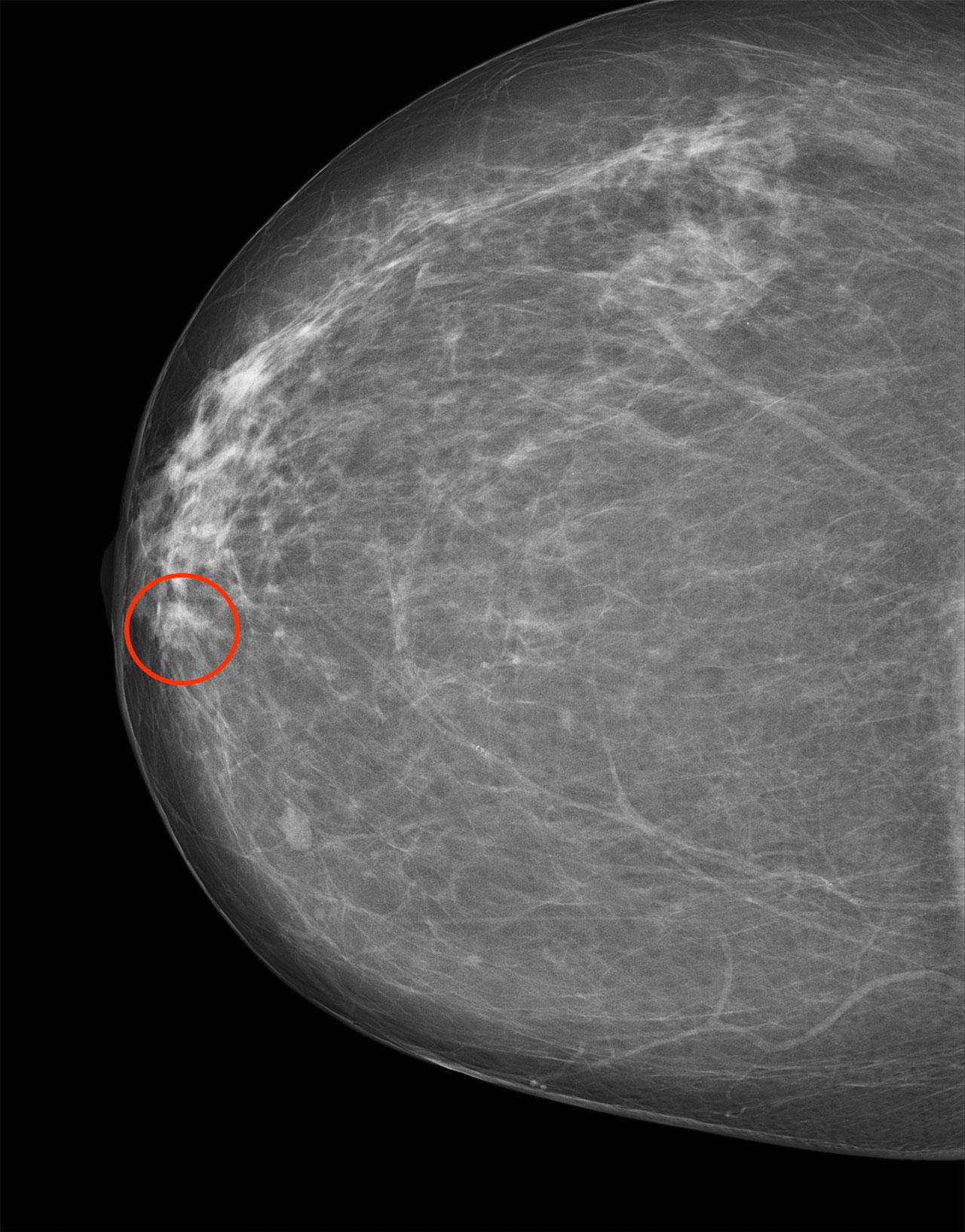 ductalis papilloma kapcsolódik a rákhoz
